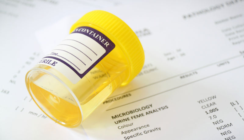 Employee Drug Testing: For Better or Worse, Improving the Process